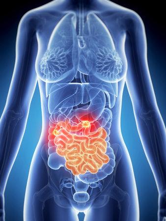 intestino: 3d rindió la ilustración de la anatomía femenina - cáncer de intestino