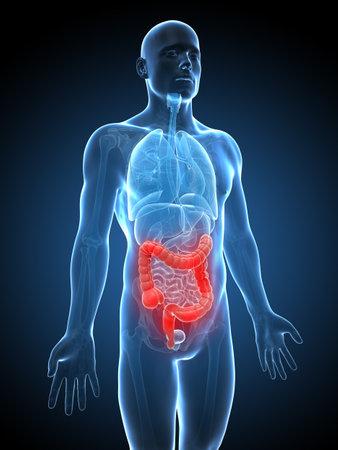 colon: 3d ha reso l'illustrazione di un colon infiammato Archivio Fotografico