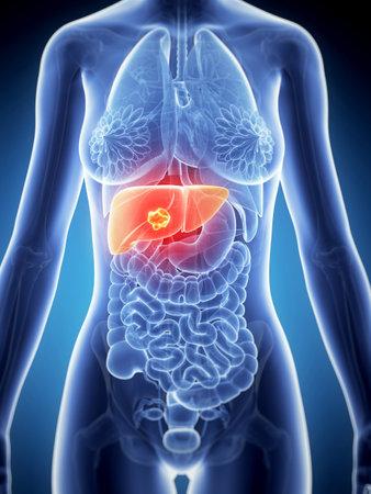 3d rendered illustration of the female anatomy - liver cancer illustration