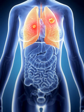 tumor: 3d rendered illustration of the female anatomy - lung cancer