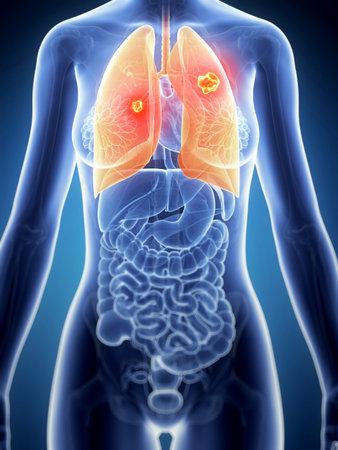 pulmon sano: 3d rindi� la ilustraci�n de la anatom�a femenina - c�ncer de pulm�n
