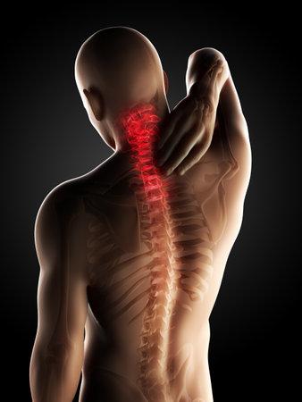 colonna vertebrale: Illustrazione di rendering 3D - collo doloroso Archivio Fotografico