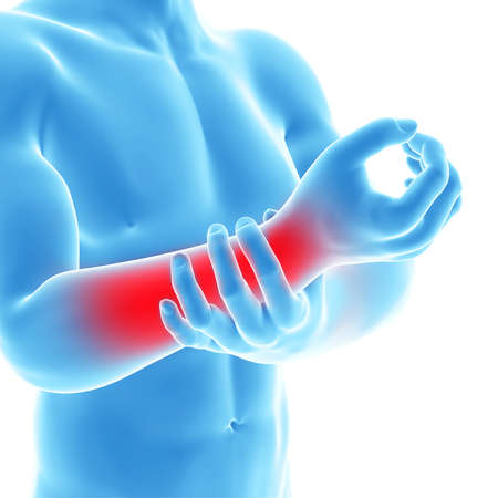 wrist joint: 3d rendered illustration of a man having pain in the arm Stock Photo