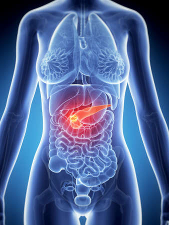 3d rendered illustration of the female anatomy - pancreas cancer Stock Illustration - 19040614