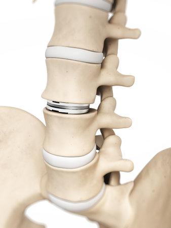 columna vertebral: 3d rindi� la ilustraci�n de un diss artificial Foto de archivo