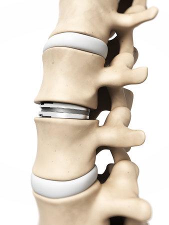 medula espinal: 3d rindi� la ilustraci�n de un diss artificial Foto de archivo
