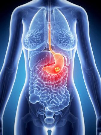 3d rendered illustration of stomach cancer Stock Illustration - 19040618
