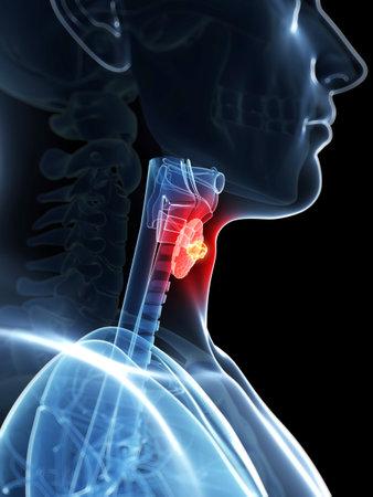 canc�rologie: 3d a rendu l'illustration d'un cancer de la thyro�de