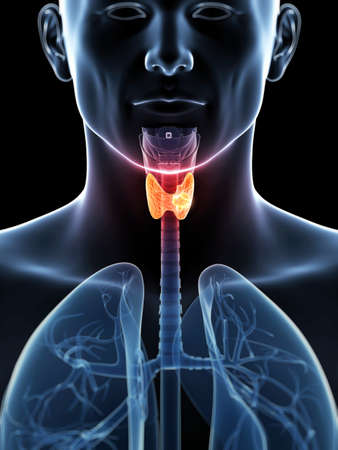 anatomia: 3d rindi� la ilustraci�n de un c�ncer de tiroides Foto de archivo