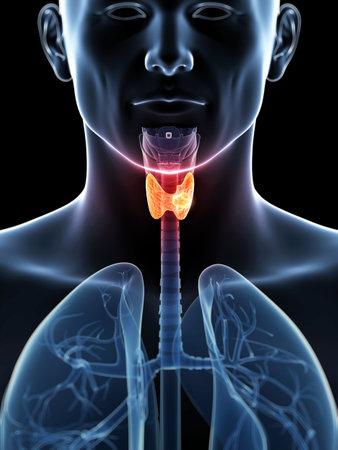 3d rindió la ilustración de un cáncer de tiroides Foto de archivo - 19040236