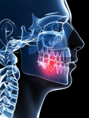 muela: 3d rindi� la ilustraci�n de un diente doloroso Foto de archivo