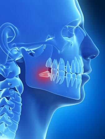 healthy teeth: 3d rindi� la ilustraci�n de las muelas del juicio