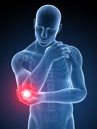 3 d レンダリングされた医療イラスト - 痛みを伴う肘 写真素材