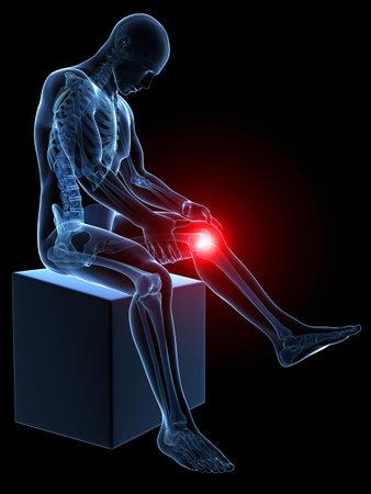 3d teruggegeven medische illustratie - pijnlijke knie Stockfoto