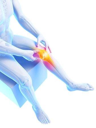 3d gerenderten medizinische Illustration - schmerzhafte Knie Standard-Bild