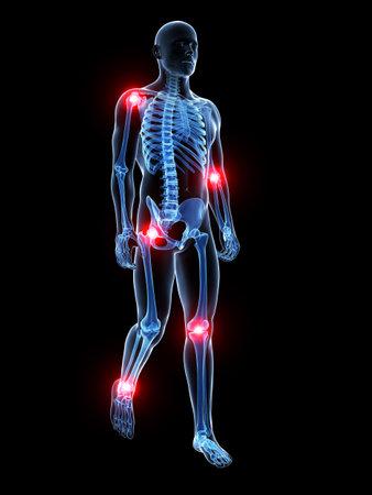 3d teruggegeven medische illustratie - pijnlijke gewrichten