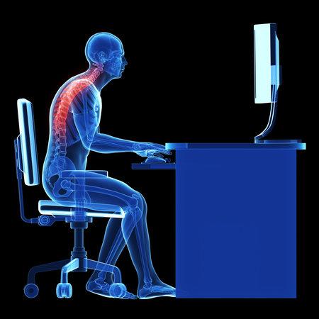 3d teruggegeven medische illustratie - verkeerde zithouding