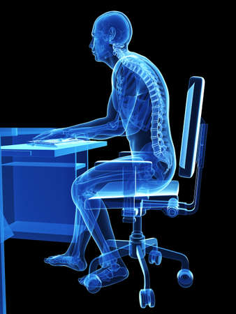 3 d レンダリングされた医療イラスト - 間違って座位姿勢