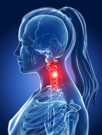 3d rendered medical illustration - painful neck