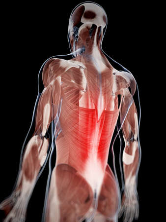 3d rendered illustration of musculare backache Stock Photo