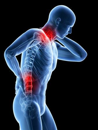 고통스러운 허리와 목을 가진 사람의 3D 렌더링 된 그림