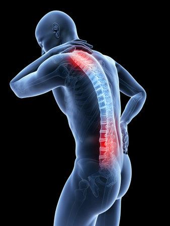 3d teruggegeven illustratie van een man met een pijnlijke rug en nek