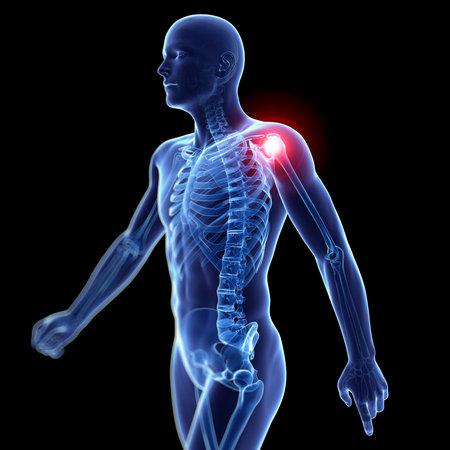 3d rendered illustration of a painful shoulder Stock Illustration - 22616208