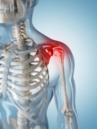 痛みを伴う肩の 3 d レンダリングされたイラストレーション