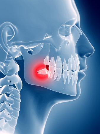 埋伏智歯の 3 d レンダリングされた図 写真素材