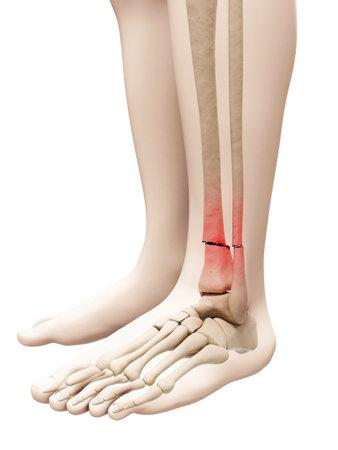 medical illustration of a broken leg bone
