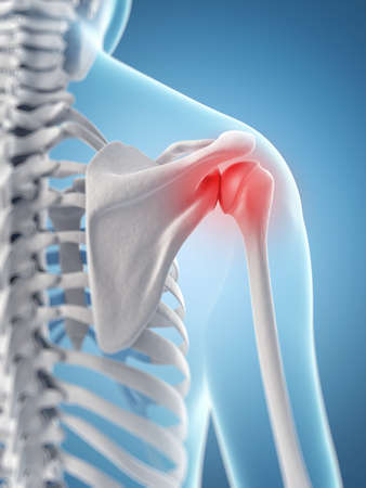 inflamed shoulder joint Stock Photo
