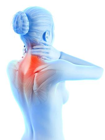 medische 3D-afbeelding - een vrouw met een pijnlijke nek