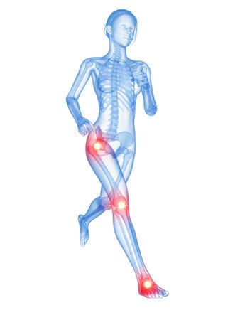 medical 3d illustration - jogger having pain in the joints Stock Illustration - 26686623