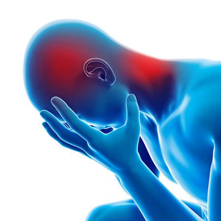 medische 3D-afbeelding - man met een hoofdpijn Stockfoto