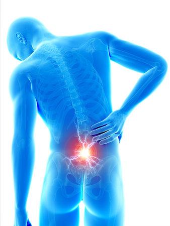 człowiek o ostry ból w plecach Zdjęcie Seryjne