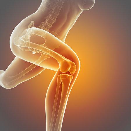 illustratie van een lopende vrouw - zichtbaar kniegewricht