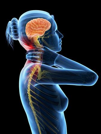 痛みを伴う首 - 目に見える神経を持つ女