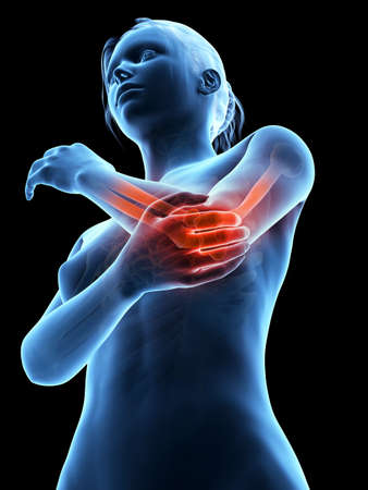 woman having acute pain in the elbow joint