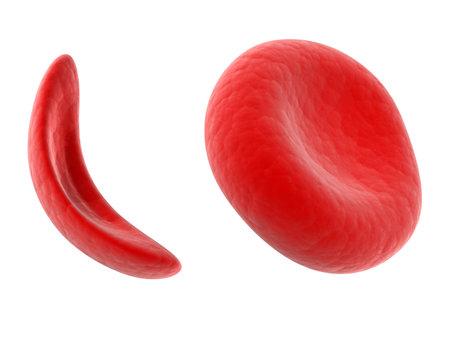 科学イラスト - 鎌状赤血球白血球細胞