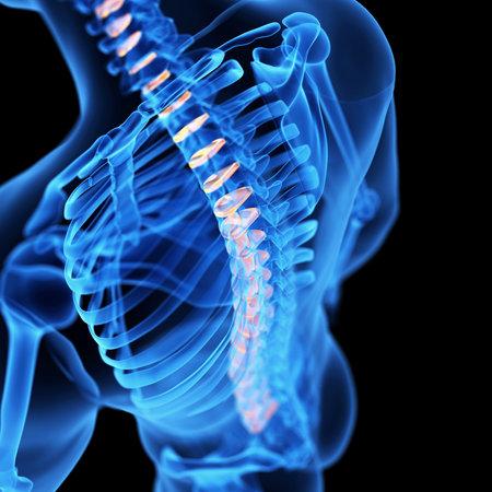 medical 3d illustration of the intervetebral discs Stock Photo