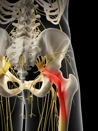 medisch nauwkeurige illustratie - pijnlijke Ischiaszenuw