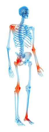 Medisch nauwkeurige illustratie - pijnlijke gewrichten Stockfoto - 43183221