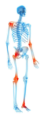 medically accurate illustration - painful joints