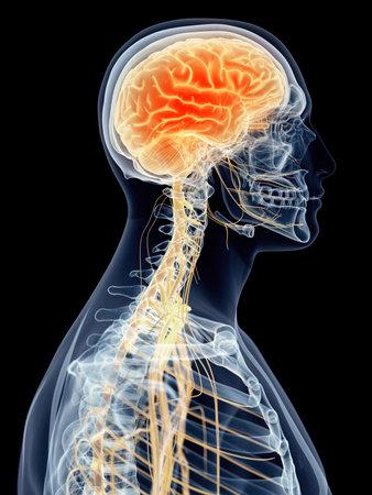 medisch nauwkeurige illustratie - hoofdpijn Stockfoto