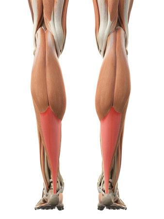 アキレス腱断裂の医学的に正確な図
