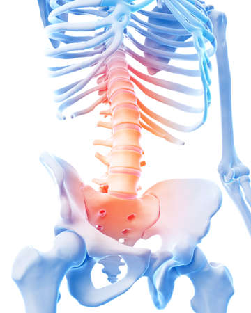 medical 3d illustration of a painful lumbar spine