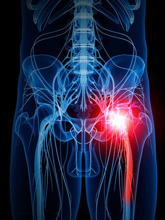 고통스러운 좌골 신경의 의학적으로 정확한 그림