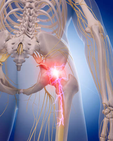 medically accurate illustration of a painful sciatic nerve Stock Illustration - 44448325