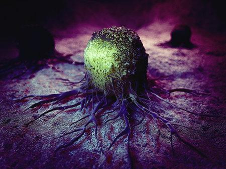 Ilustración médica precisa de célula cancerosa Foto de archivo - 45345755