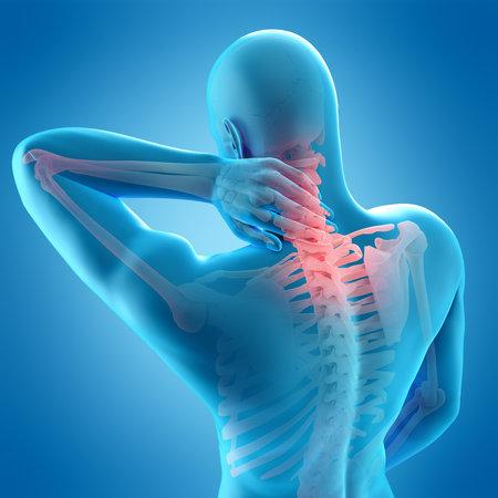 의학적으로 정확한 목에 통증의 3d 일러스트